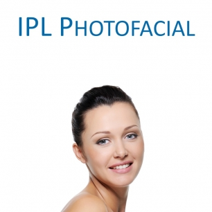 IPL Photofacial (Laser Procedure) - package of three treatments