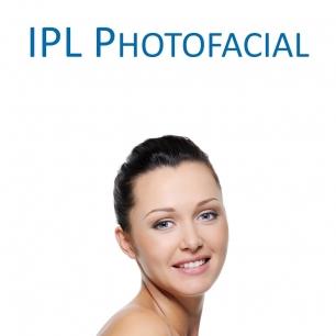 IPL Photofacial (Laser Procedure)