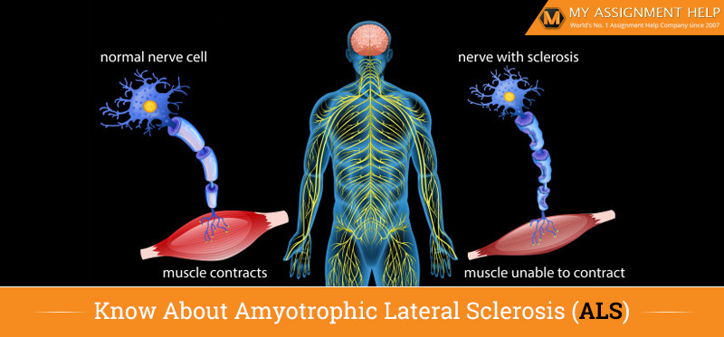 Know About Amyotrophic Lateral Sclerosis (ALS)