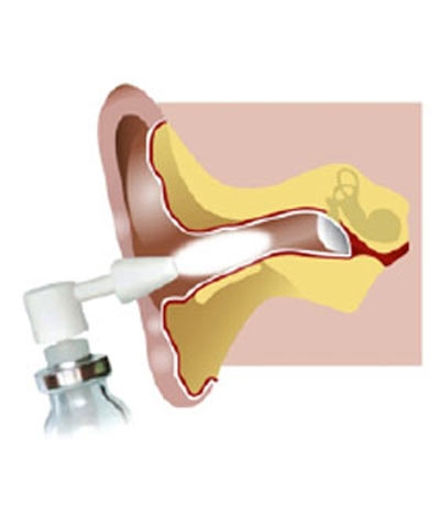 ear shield directions diagram b