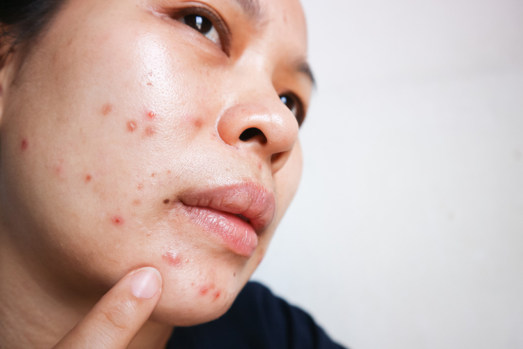 Woman struggling with acne breakouts and pimples on her cheeks