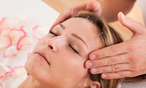 $783 for 10 Acupuncture Treatments for Returning Patients