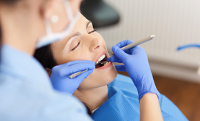 $200 for an Exam, Cleaning and Sinsational Smile Whitening