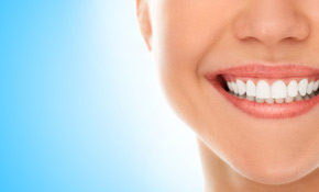 $1,050 for a Porcelain Smile Makeover Including Teeth Whitening