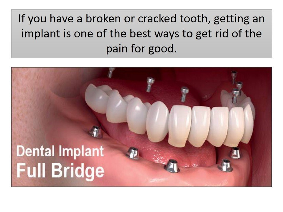 Warning Signs Which Indicate the Need for Dental Implants