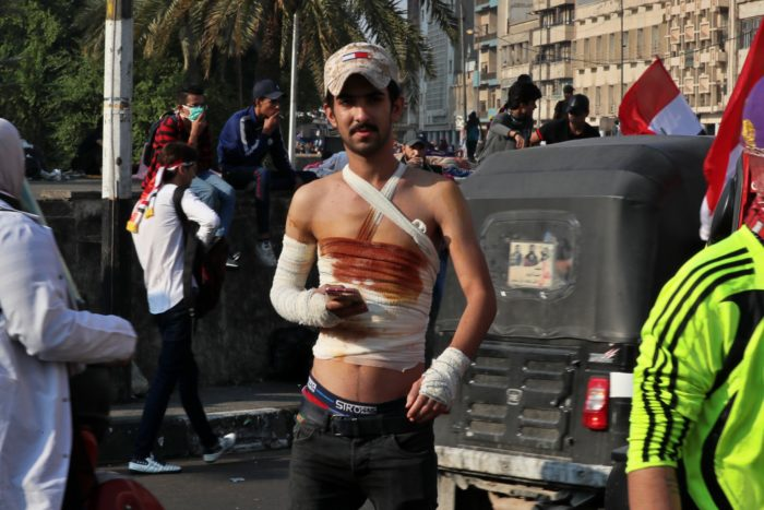 After receiving hospital treatment, a wounded protester returns to Baghdad's Tahrir Square to rejoin anti-government demonstrations there (Photo: Hadi Mizban/AP).