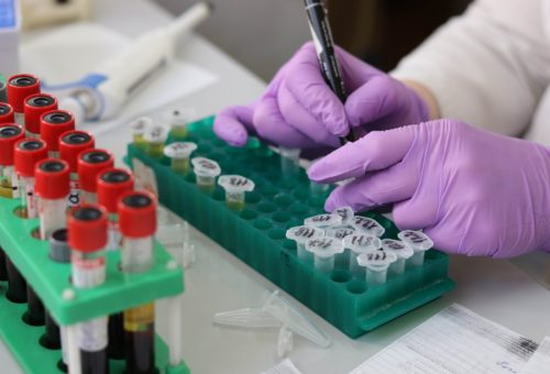 Saudi Universities Step Up Support for Research on Coronaviruses