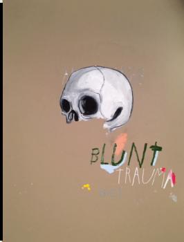 20161026052549-blunttrauma