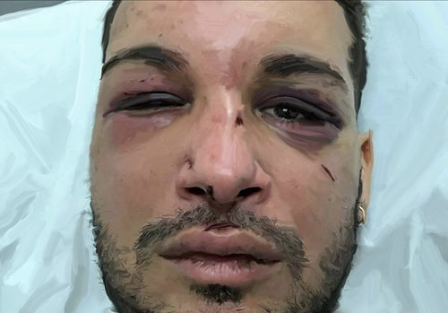 20170422222238-zak_a_prominent_french_lgbt_activist_was_drugged__raped__beaten_and_held_hostage_for_two_days_before_risking_his_life_to_get_free_marseilles_2017