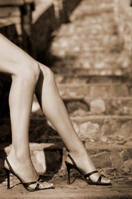 Moyle-legs-photo