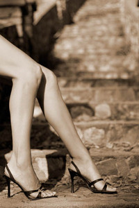 Moyle-legs-photo