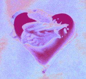 20101209082629-heart5
