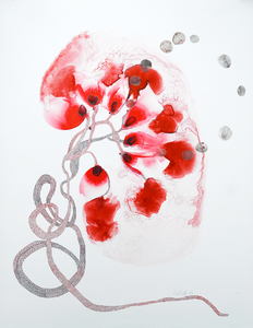 20110107131732-kidney