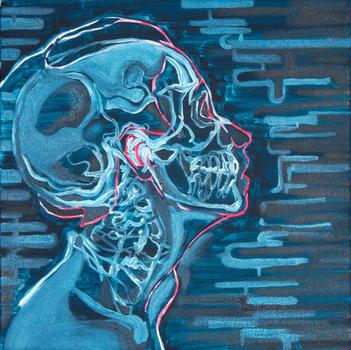 20110707084200-laryngeal-prominince