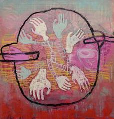20110721123534-2_broken_hands