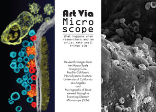 20110811123008-ucla_microscope_front