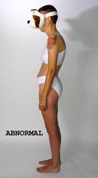 20110927040248-abnormal1sml