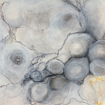 20120905014227-metastasis