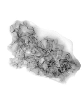 20130313052448-tanyalin_black_fungus_positive_xray