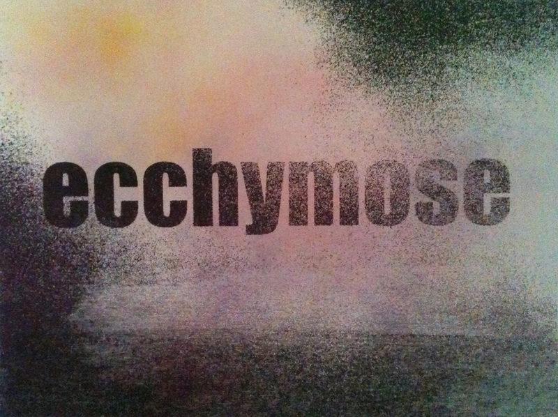 20130315162339-ecchymose_site