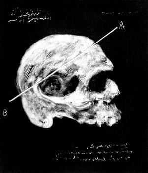 20150504170200-skull2