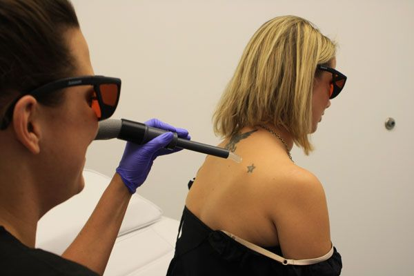 Tattoo removal business opens on mill avenue the state press for Tattoo removal business