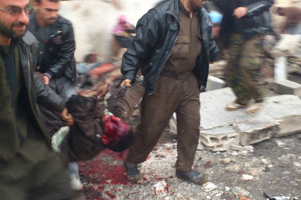 10,000 children dead in Syria - Daily Sabah |Dead Syrians