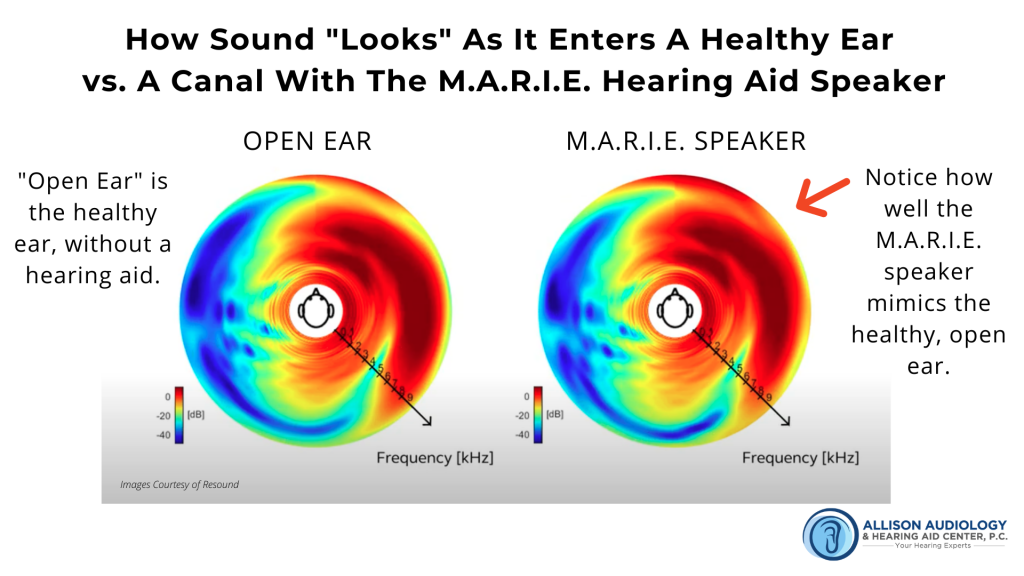a diagram of how sound appears on a frequency graph in a healthy ear vs a a M.A.R.I.E. hearing aid speaker