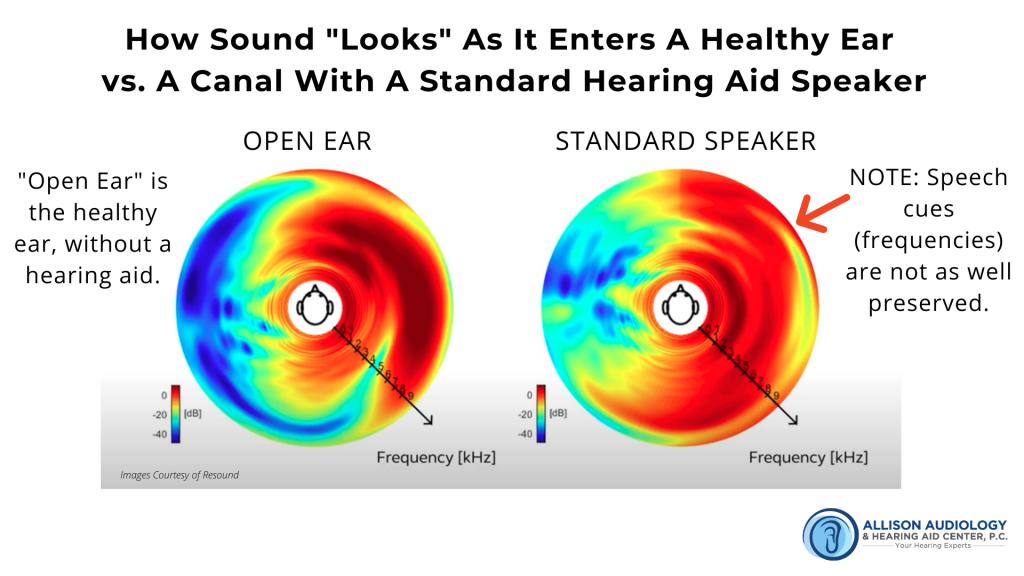 2nd Image of Sound in Healthy Ear vs Standard Speaker B Roll