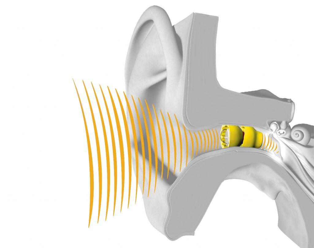Best Invisible Hearing Aid Houston and Lake Jackson Lyric