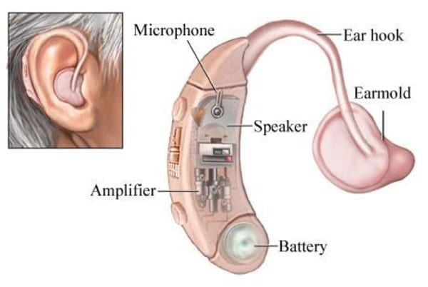 How Do Hearing Aids Work - What Are the Parts of a Hearing Aid