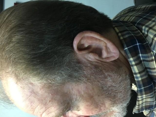 RIC in Ear