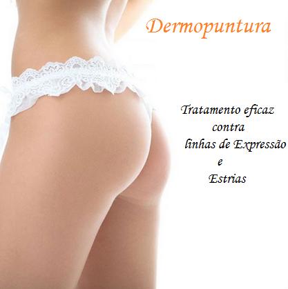Dermopuntura: trate estrias, rugas e marcas de expressão