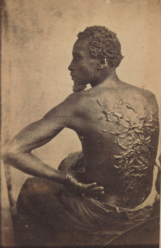 A photograph of a slave, his back exposed to the camera, showing welts and scars from being whipped.