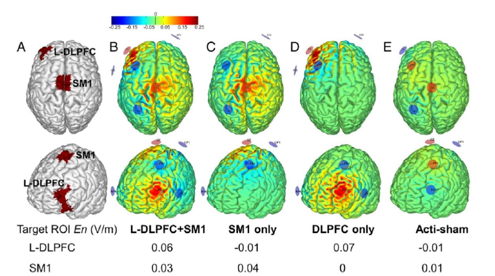 Non-invasive Brain Stimulation of the Elderly is Expected to Improve Mobility and Reduce the Risk of Falls