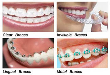 Orthodontic Treatment Herndon Va