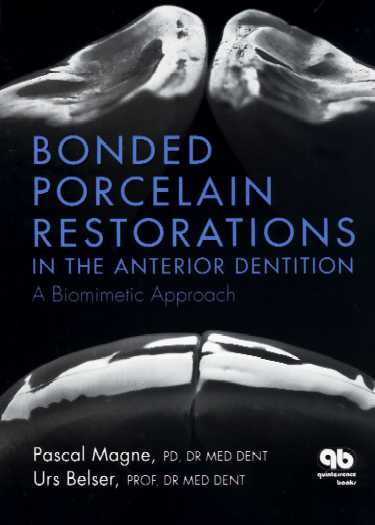 Anterior restorations bonded dentition in the pdf porcelain