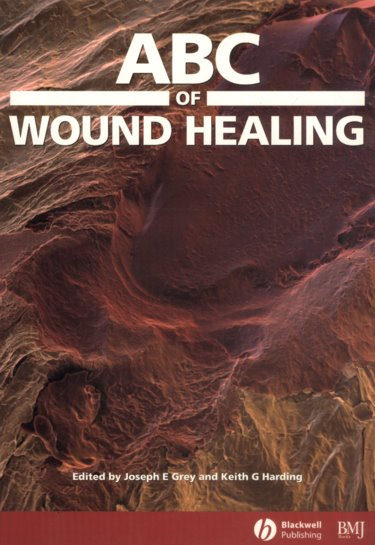 ABC of Wound Healing Cover Image