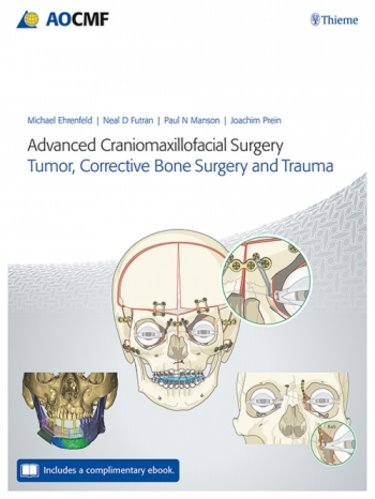 Advanced Craniomaxillofacial Surgery: Tumor, Corrective Bone Surgery, and Trauma. Text with Access Code Cover Image