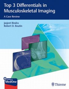 Top 3 Differentials in Musculoskeletal Imaging: A Case Review Cover Image