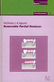 Removable Parial Dentures