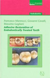 Adhesive Restoration of Endodontically Treated Teeth