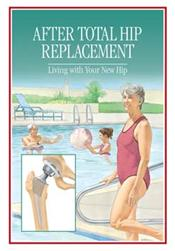 After Total Hip Replacement: Living with Your New Hip Pamphlet
