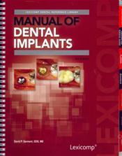 Manual of Dental Implants