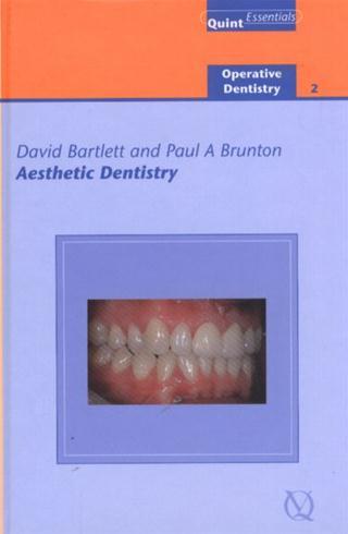 Search results aesthetic dentistry bartlett david e e book ebrary quintessence publishing company incorporated pub date 0505 2005 edition 01 fandeluxe Gallery