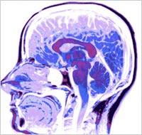 Brain-Scan-B