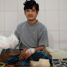 Bangladesh 'Tree Man' sees hope after 16 surgeries