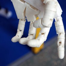 AI is transforming medical diagnosis, prosthetics, and vision aids