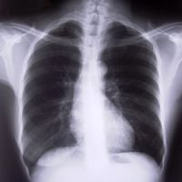 How to Identify Costochondritis | eHow