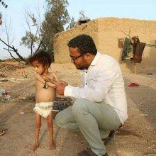 One-man NGO tries to save starving kids in Yemen